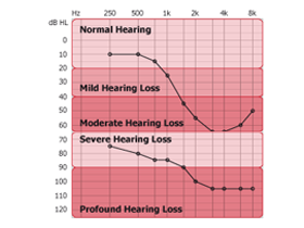 hearing_loss