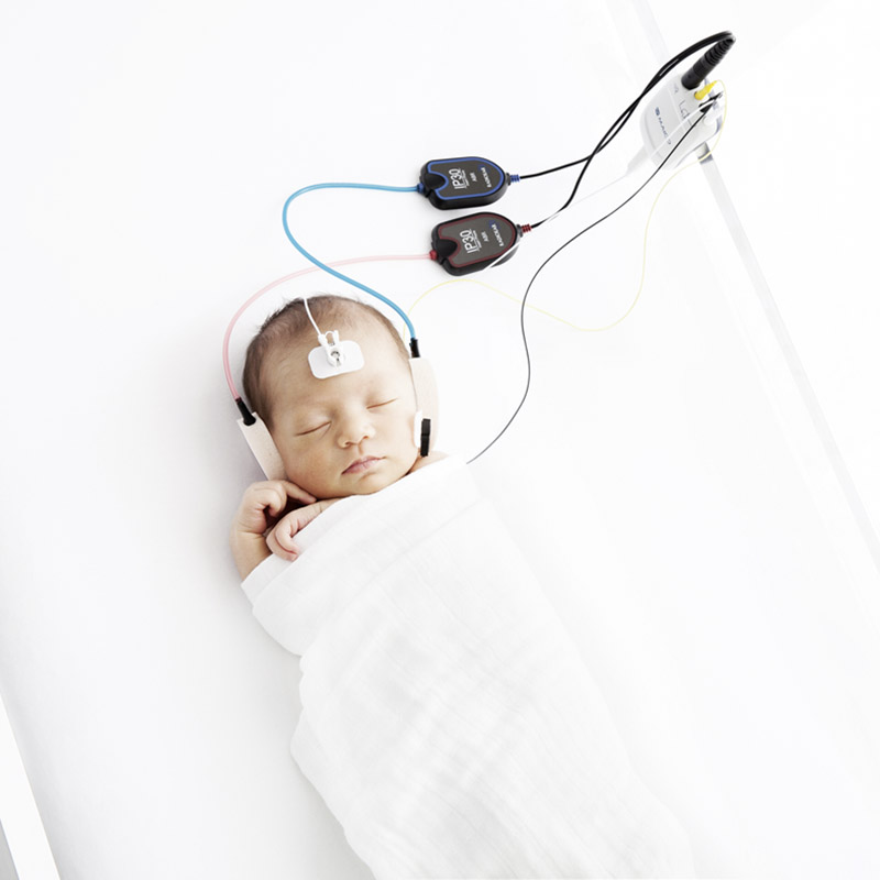 A binaural automated ABR method is used while testing a sleeping baby with MAICO easyScreen and Sanibel Infant EarCup