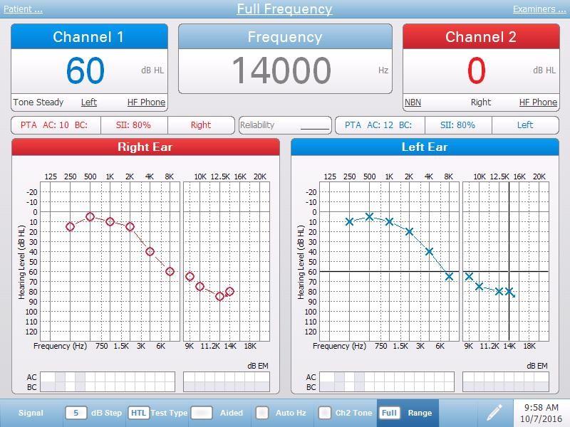 High Frequency Air Bone Conduction Testing Screen
