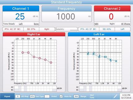 Pello Standard Audiometry