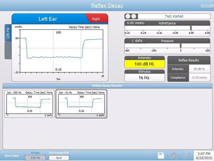 acoustic-reflex-testing-screen