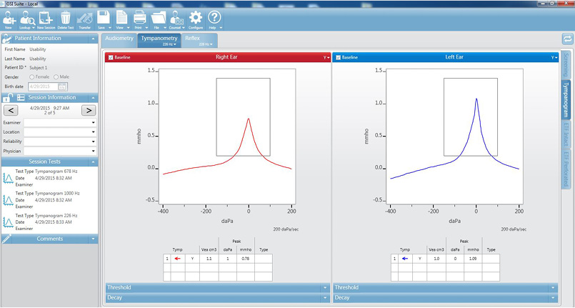 Tympanometry Results
