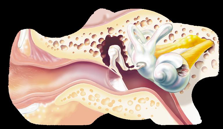 Sensorineural_hearing_loss_768x445