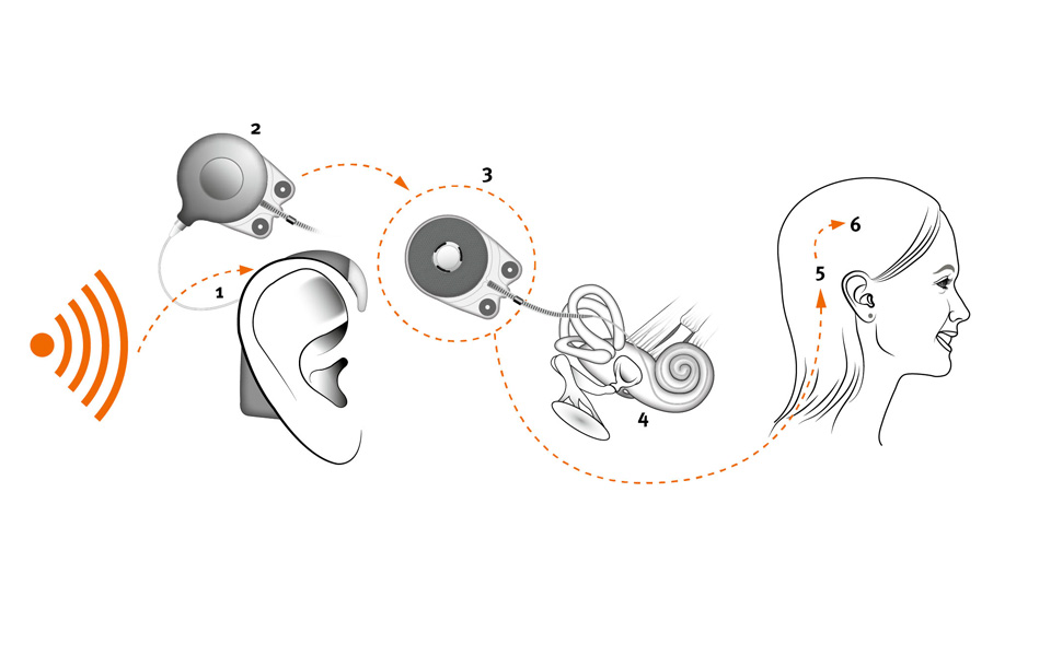 How cochlear implants work