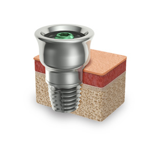 Read more about the well-proven method Brånemark Read more about the Brånemark principle of osseointegration